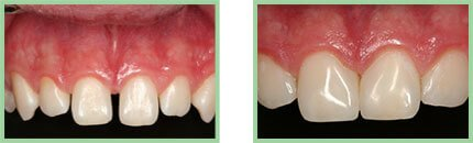 Sabharwal Dental Group - Image OF B/A Case - 01