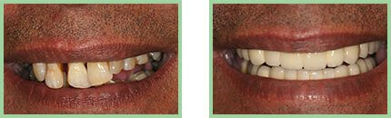 Sabharwal Dental Group - Image OF B/A Case - 04