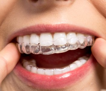 Orthodontics By Dr sabharwal