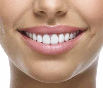 An affordable way to makeover your appearance with cosmetic dentistry in Toronto