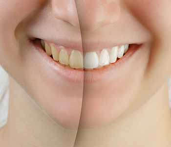 Toronto-area Cosmetic Dentist Provides Tips For Keeping Your Smile White