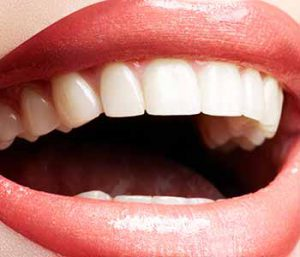 Cosmetic Dental Makeovers At His Dental Clinic In Toronto