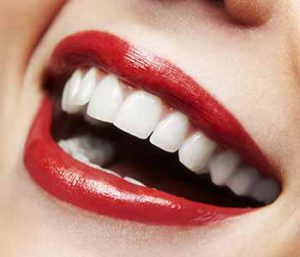 Teeth Whitening Service Offers Two Ways To Brighten Your Smile