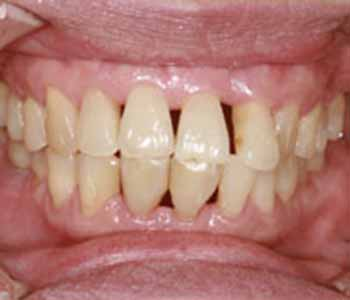 Vaughan Dental Clinic Learn About Gum Recession