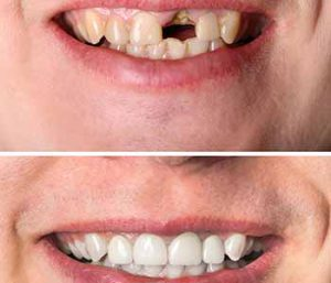 Implants To Replace Missing Teeth And Restore Smile