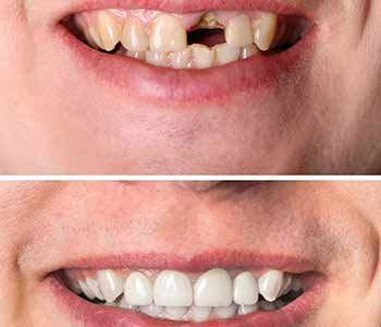 Vaughan Dentist Offers Dental Implants To Replace Missing Teeth And Restore Smile