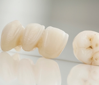 "Woodbridge, ON patients ask, ""Where can I find porcelain crowns for teeth near me?"""