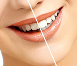 find laser teeth whitening