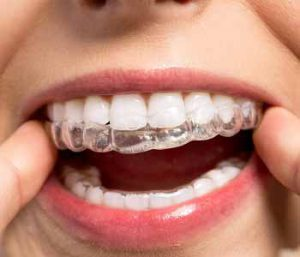 Dr. Sabharwal and the team at Sabharwal Dental Group offer invisible braces to straighten teeth