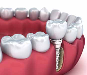 Dentist In Woodbridge Explains Implant Procedure