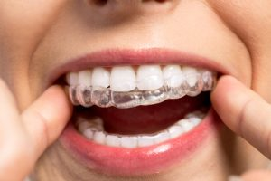 Dr Sabharwal Orthodontic Treatment